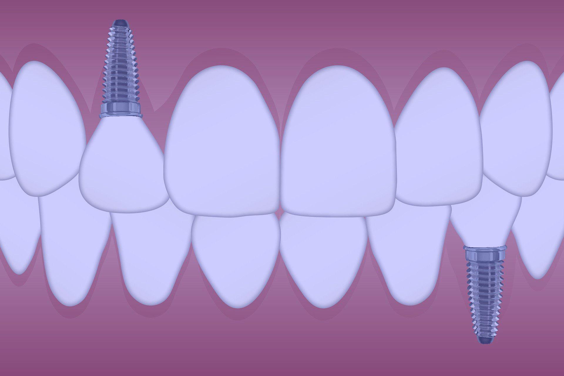 Care sunt pasii de dupa operatia cu implant dentar?