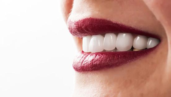 Estetica și îngrijirea dinților cu fațete dentare